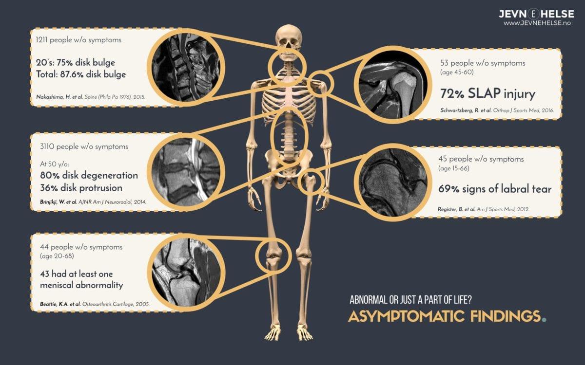 Abnormalities found on MRI